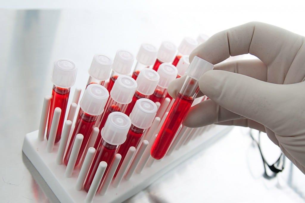 exame de sangue para detectar bactéria