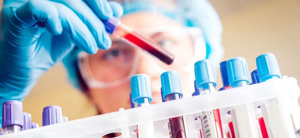 exame hpv sangue