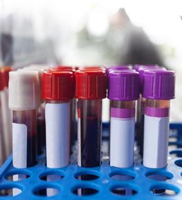 exames laboratoriais com desconto
