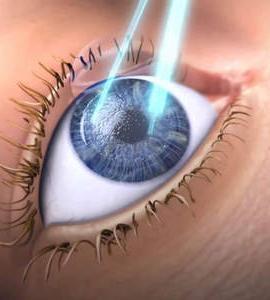 Preço de cirurgia de miopia